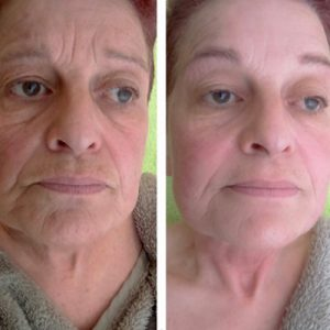 Beautique Rianne - Natural Face Lifting & Sculp